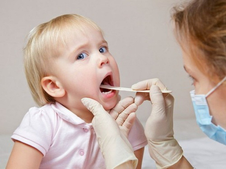 thuốc kháng sinh viêm họng cho trẻ