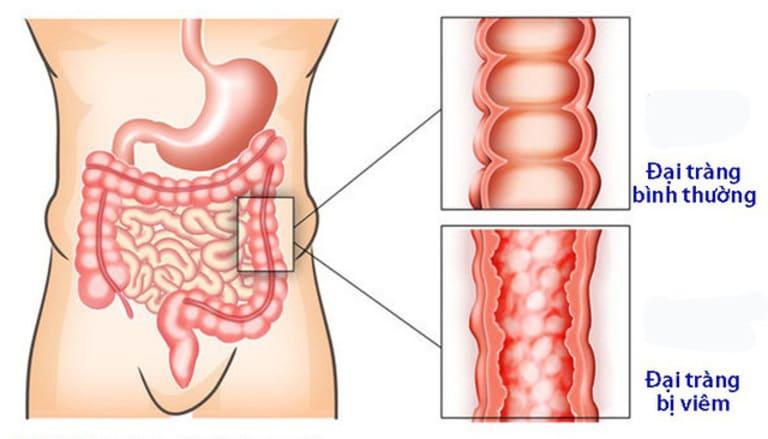 Tình trạng viêm đại tràng xảy ra ở lớp niêm mạc - nơi tiếp xúc trực tiếp với chất thải