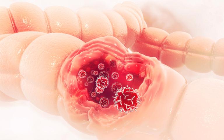 Ung thư đại tràng rất khó phát hiện ở giai đoạn đầu vì biểu hiện rất mơ hồ. Đa số các trường hợp phát hiện bệnh trong giai đoạn này là nhờ kỹ thuật tầm soát ung thư