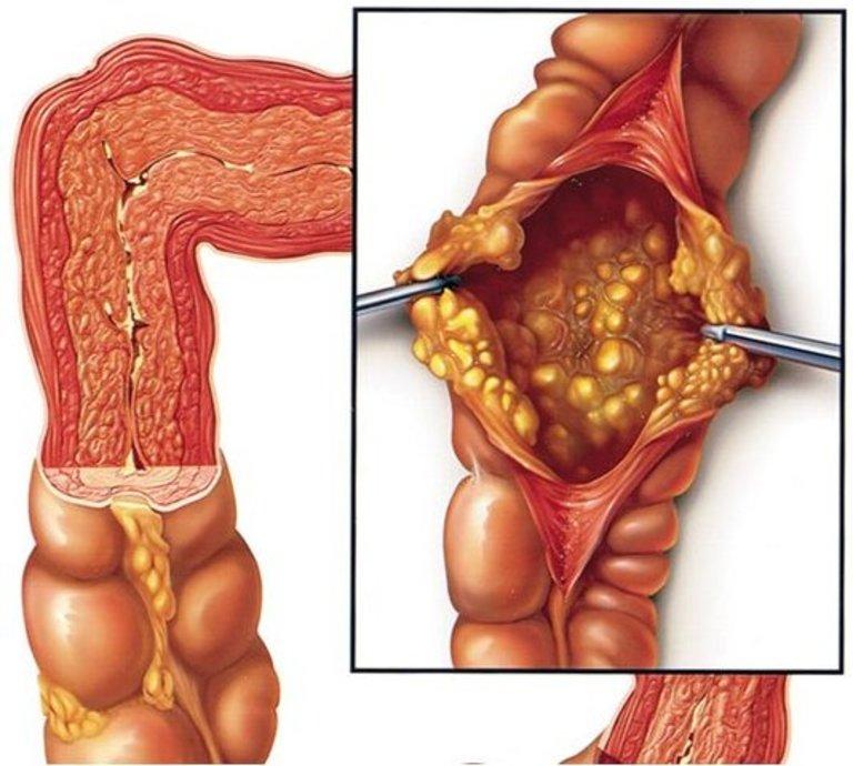 Lạm dụng thuốc kháng sinh có thể gây ra viêm đại tràng giả mạc