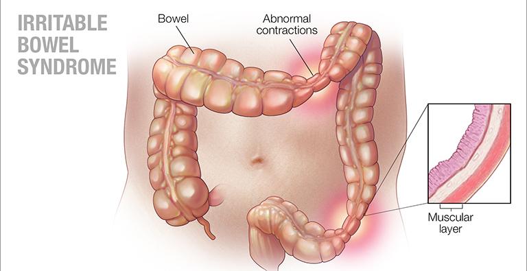 hội chứng ruột kích thích uống thuốc gì