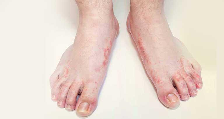 nguyên nhân gây mụn nước ở ngón chân