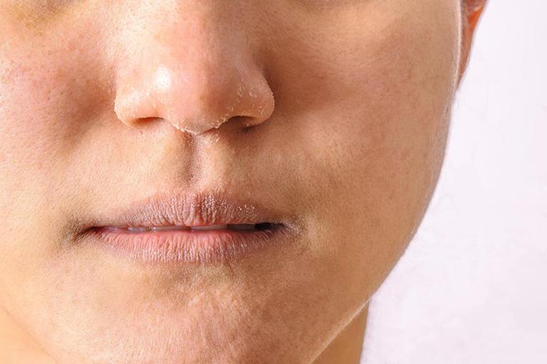 Ngứa viền môi