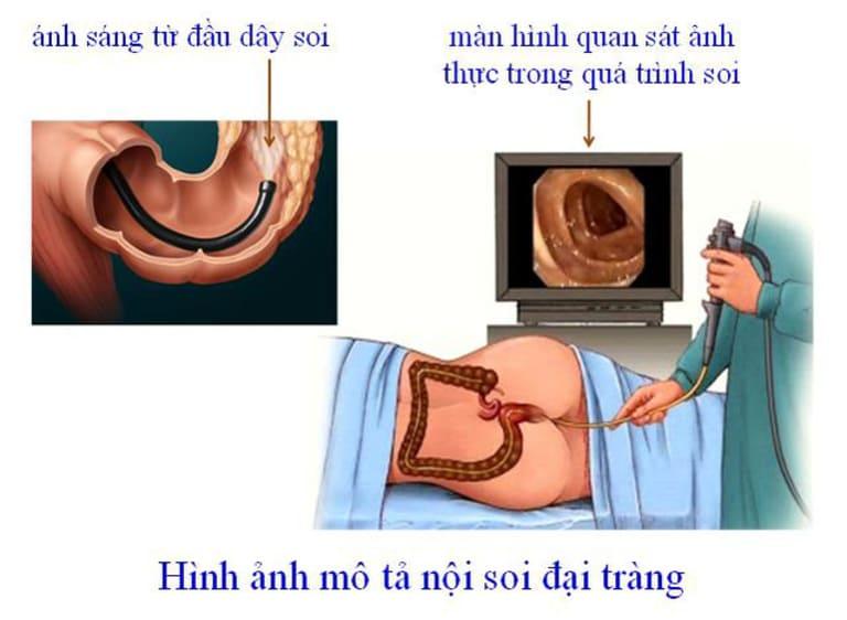 Hình ảnh được truyền về từ kỹ thuật nội soi đại tràng có thể giúp bác sĩ chẩn đoán bệnh chính xác hơn