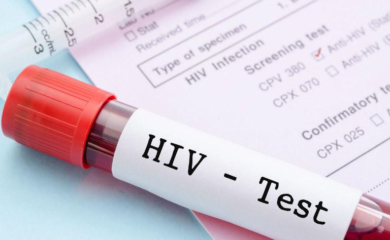 Nuốt tinh dịch có thể làm tăng nguy cơ mắc căn bệnh thế kỷ HIV/AIDS.
