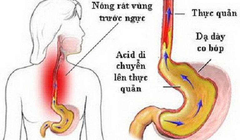 Thường xuyên ợ chua, ợ hơi hoặc ợ đắng là biểu hiện thường thấy của người đau dạ dày