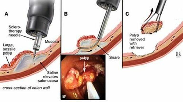 Sinh thiết polyp đại tràng