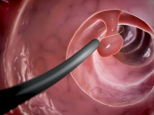 Kỹ thuật sinh thiết đại tràng bằng thòng lọng