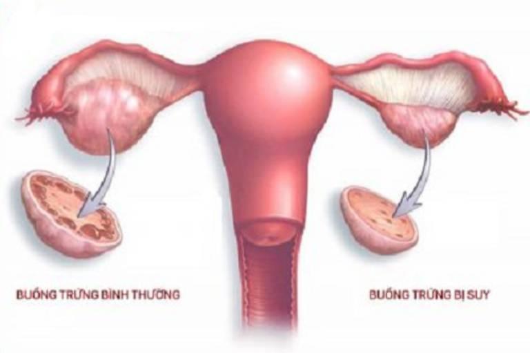 Suy buồng trứng là tình trạng chức năng buồng trứng ngừng hoạt động
