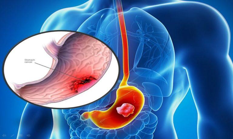 Thuốc muối Nabica chỉ làm giảm cơn đau dạ dày nhờ trung hòa lượng axit ở cơ quan này. Nó không tiêu diệt được vi khuẩn Hp