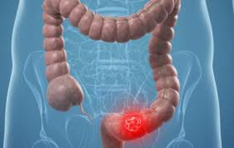 Viêm kết tràng là bệnh lý thường gặp nhất ở bộ phần này của ruột già