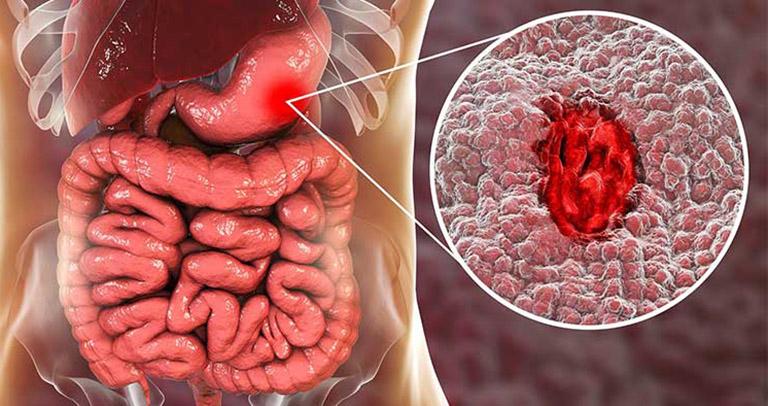 viêm dạ dày nguy hiểm như thế nào