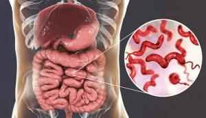 viêm dạ dày ruột