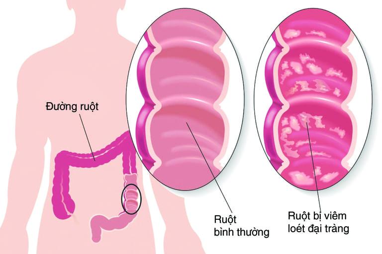 Hình ảnh mô phỏng lòng ruột già bị viêm loét và bình thường
