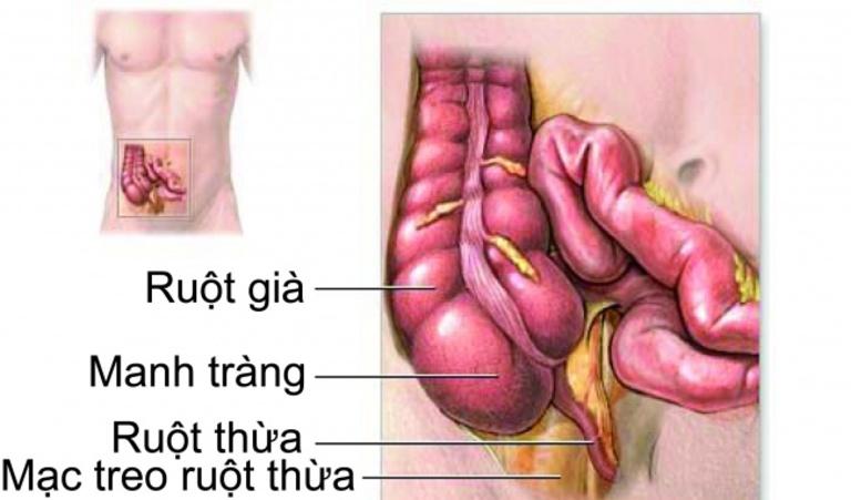 Viêm đại tràng co thắt chưa có thuốc đặc trị