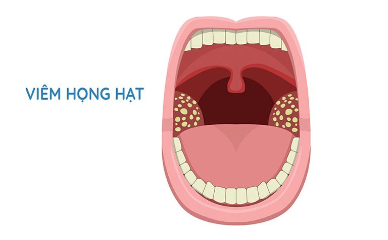 cách chữa viêm họng hạt mãn tính
