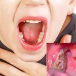 viêm họng mủ ở trẻ em