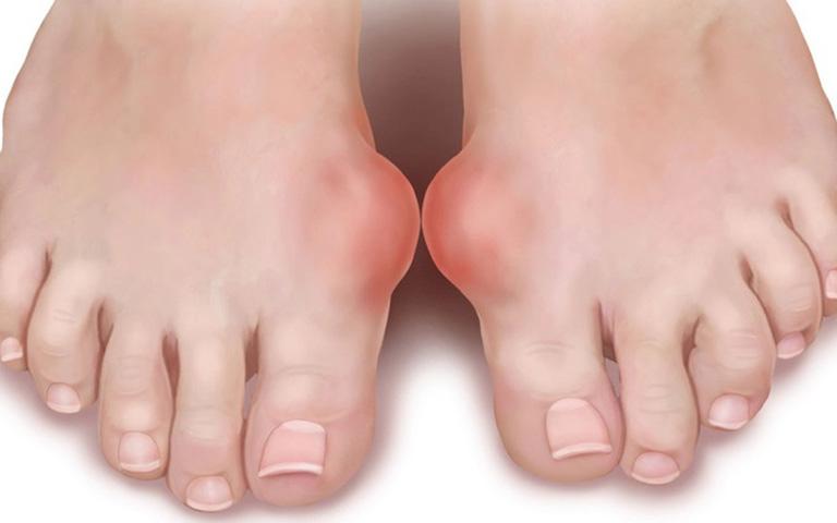 biến chứng bệnh gout ở phụ nữ