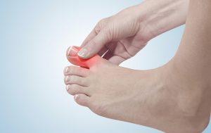 bệnh gout ở phụ nữ