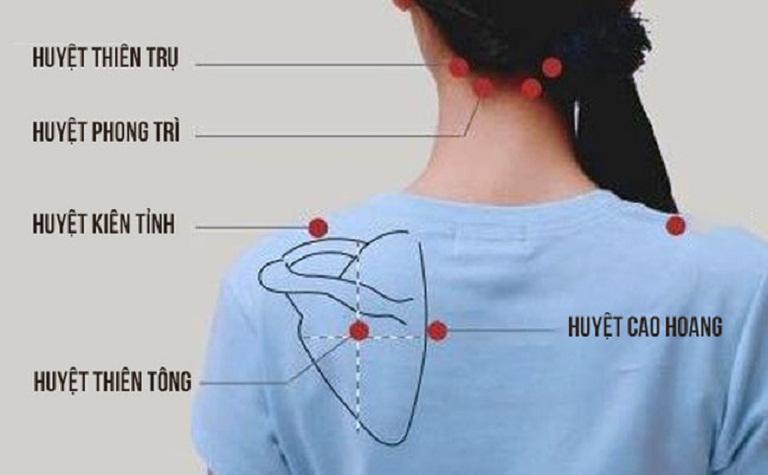 các huyệt vị châm cứu đau vai gáy