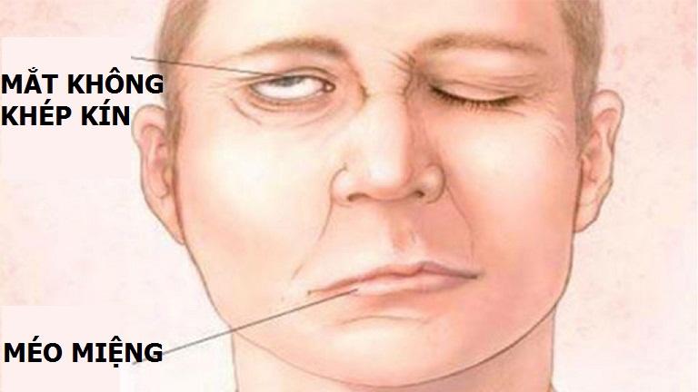 triệu chứng Liệt dây thần kinh số 7