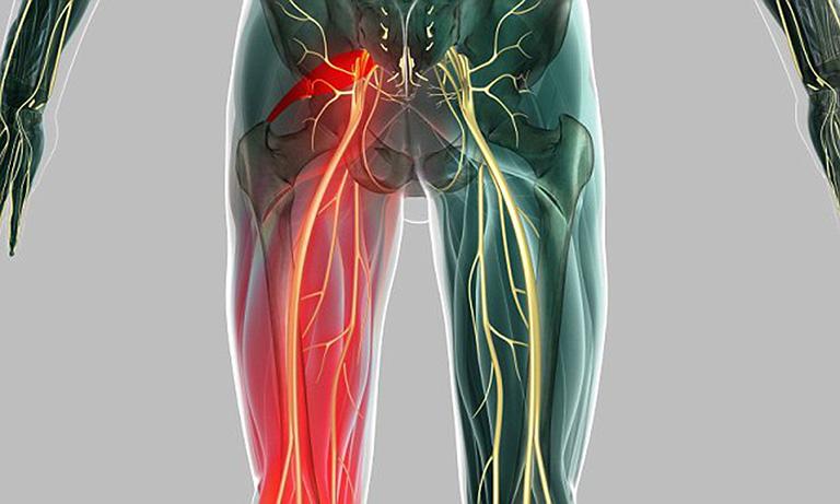 đau từ mông xuống bắp chân trái