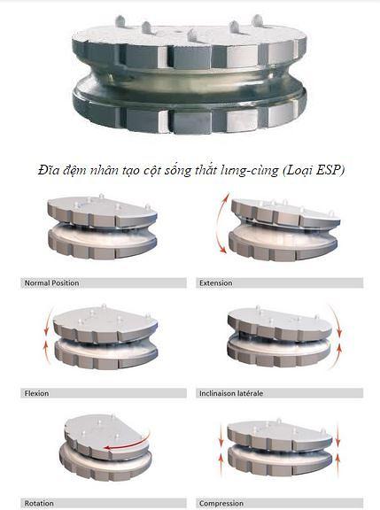 Hình ảnh đĩa đệm nhân tạo dùng cho cột sống thắt lưng cùng
