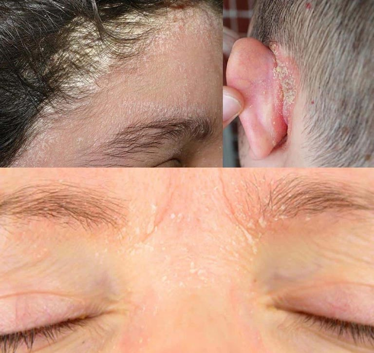 Hình ảnh bệnh vảy nến ở da đầu, mặt và tai