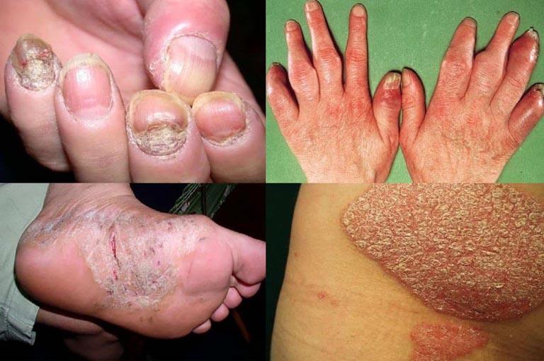 Hình ảnh bệnh vảy nến ở khớp, móng, chân và mông