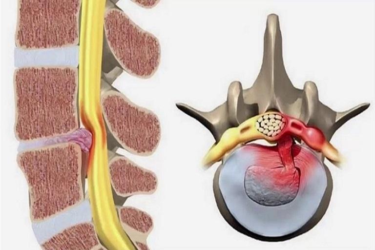đau dây thần kinh lưng