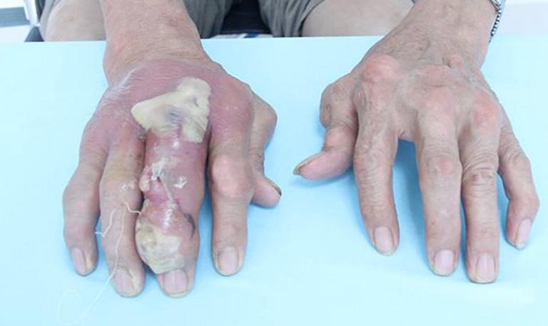 nhiễm trùng hạt tophi