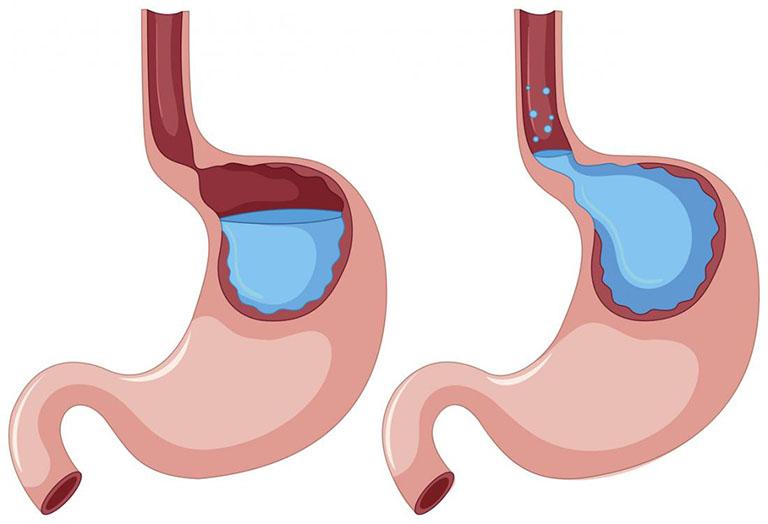 Điều trị nôn khan bằng cách làm giảm axit dạ dày