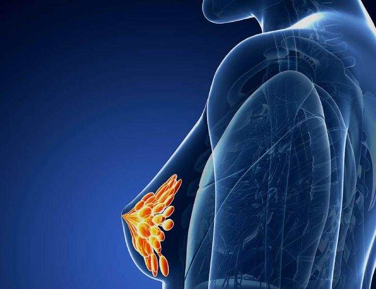 Tác hại của mất ngủ làm tăng nguy cơ mắc bệnh ung thư vú ở phụ nữ