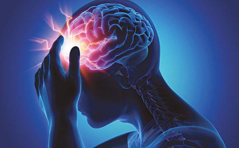 Số ca bệnh tai biến mạch máu não ngày càng tăng lên ở Việt Nam