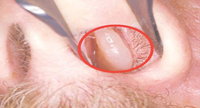triệu chứng viêm mũi vận mạch
