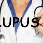 bệnh lupus ban đỏ có chữa được không?