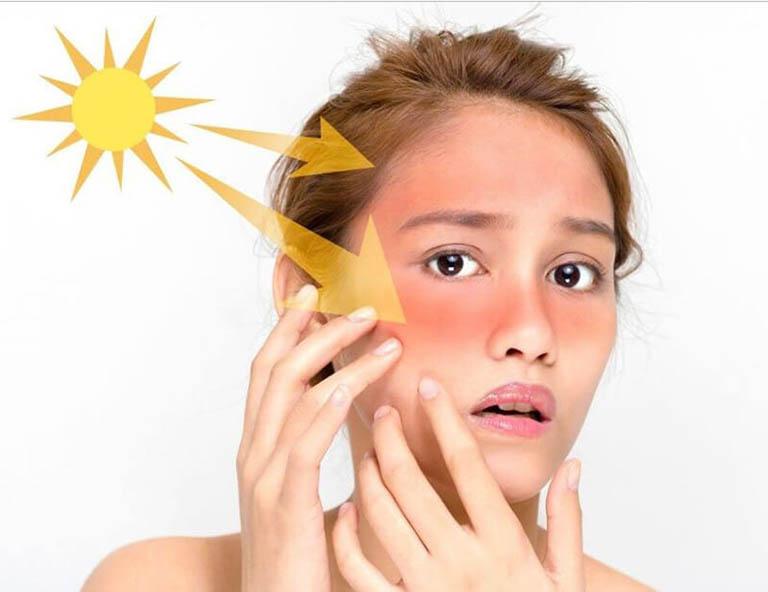cách chăm sóc da khi bị lupus ban đỏ