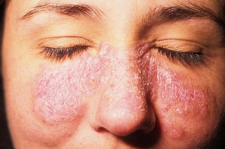 cách chăm sóc bệnh nhân lupus ban đỏ