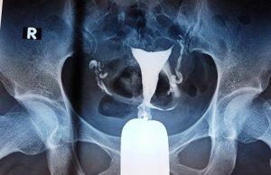 kỹ thuật chụp tử cung vòi trứng