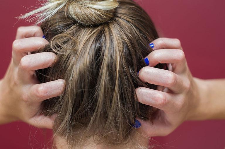 nguyên nhân rụng tóc nhiều ở tuổi 18