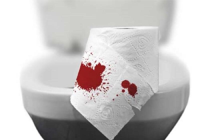 Đi ngoài ra máu là triệu chứng biểu hiện mức độ bệnh nặng