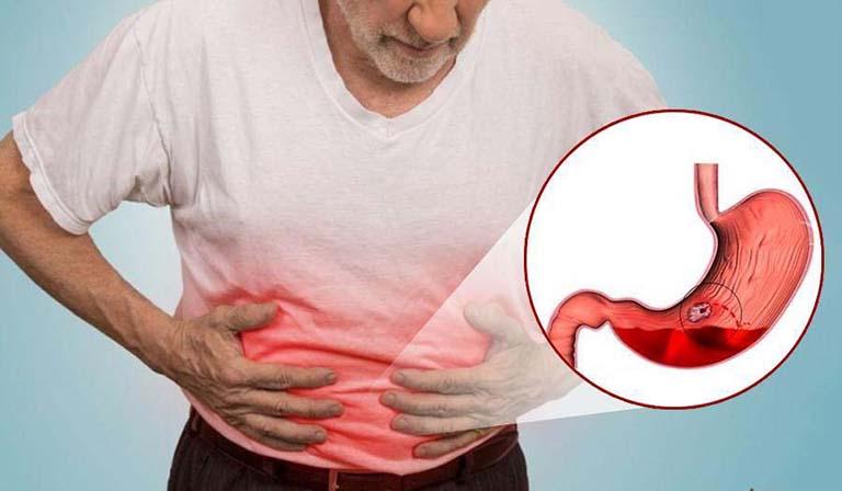cách xử lý tại chỗ khi bị xuất huyết dạ dày