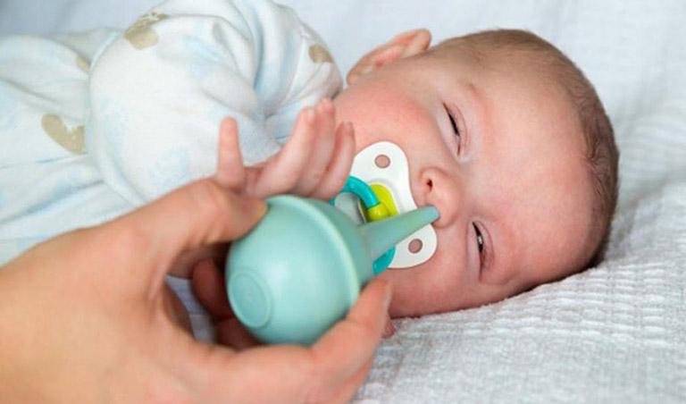 có nên hút mũi cho trẻ sơ sinh