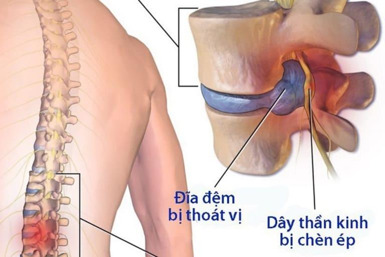 Bị đau xương cụt do bệnh thoát vị đĩa đệm