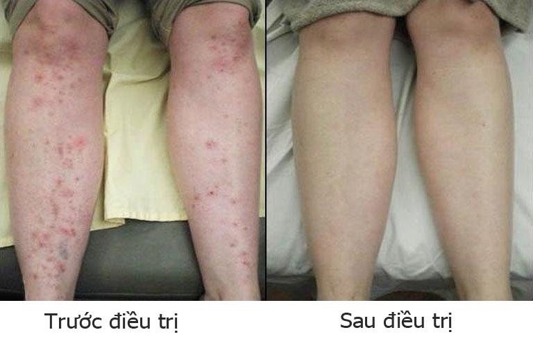 Phản hồi về hiệu quả trị viêm da tiếp xúc bài thuốc Thanh bì Dưỡng can thang