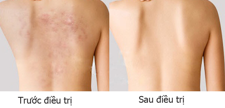 Ảnh vùng da bị viêm da tiếp xúc trước và sau điều trị trước và sau điều trị