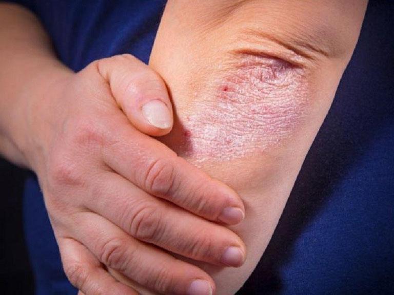 cách chữa bệnh vảy nến tại nhà