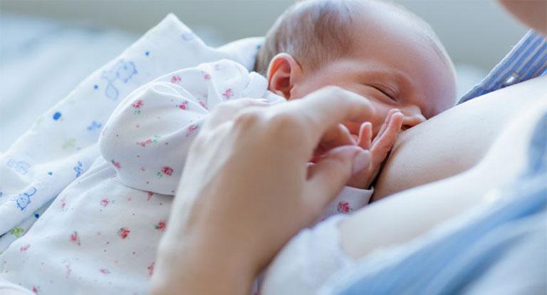 bé dị ứng sữa công thức