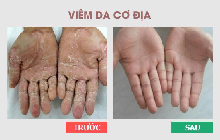 Làn da người bệnh trước và sau điều trị bằng Thanh bì dưỡng can thang