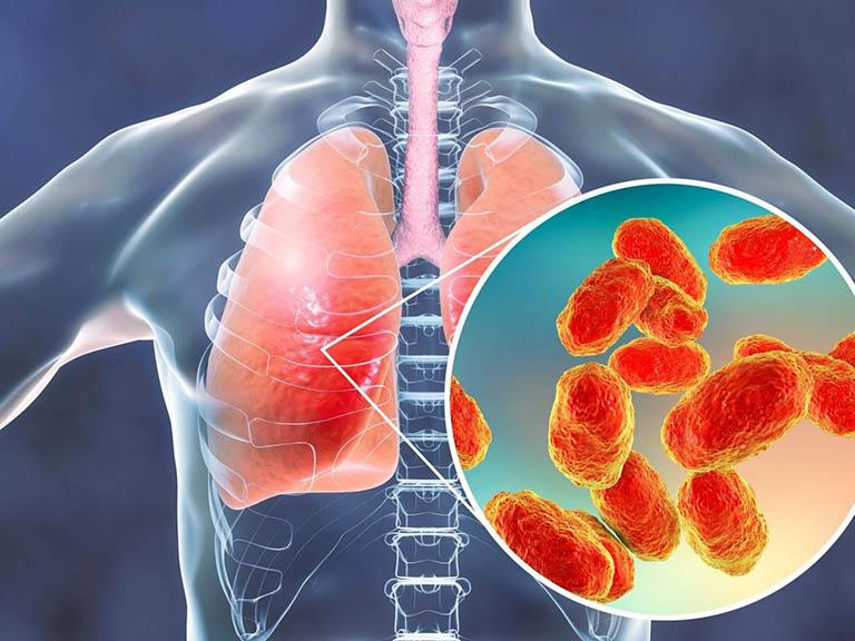 ho đờm vàng là bệnh viêm phổi